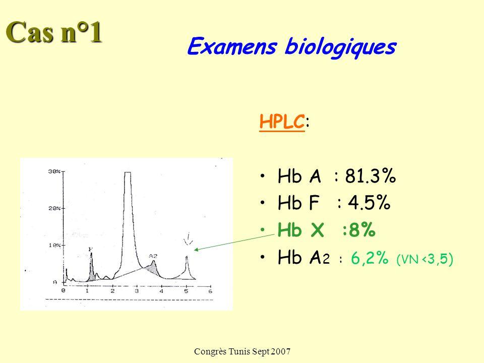 Cas n°1 Examens biologiques HPLC: Hb A : 81.3% Hb F : 4.5% Hb X :8%