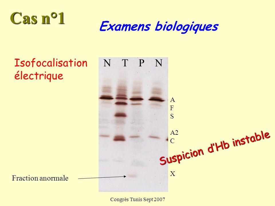 Cas n°1 Examens biologiques Isofocalisation N T P N électrique