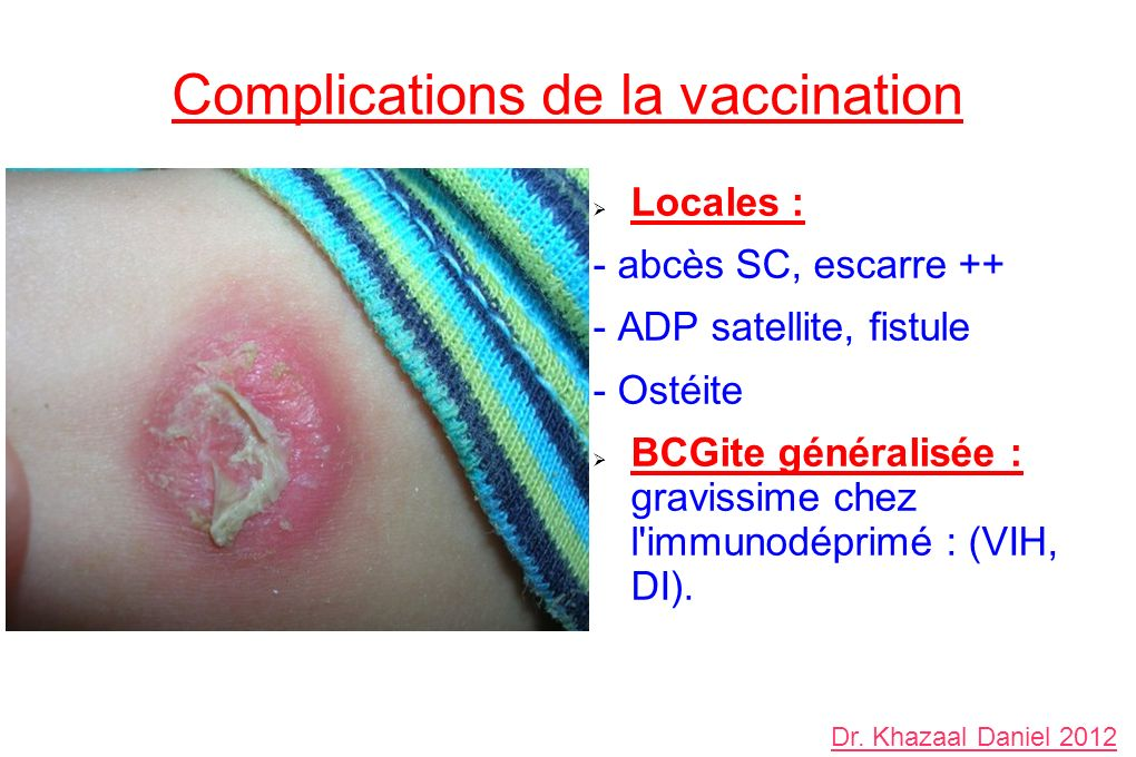 Complications de la vaccination