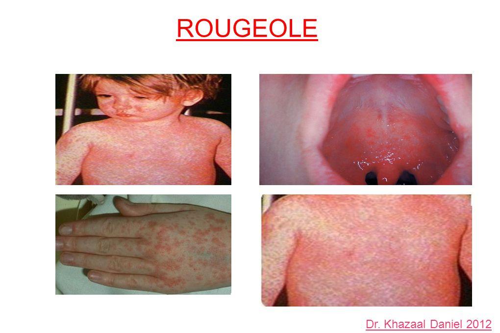 ROUGEOLE Dr. Khazaal Daniel 2012