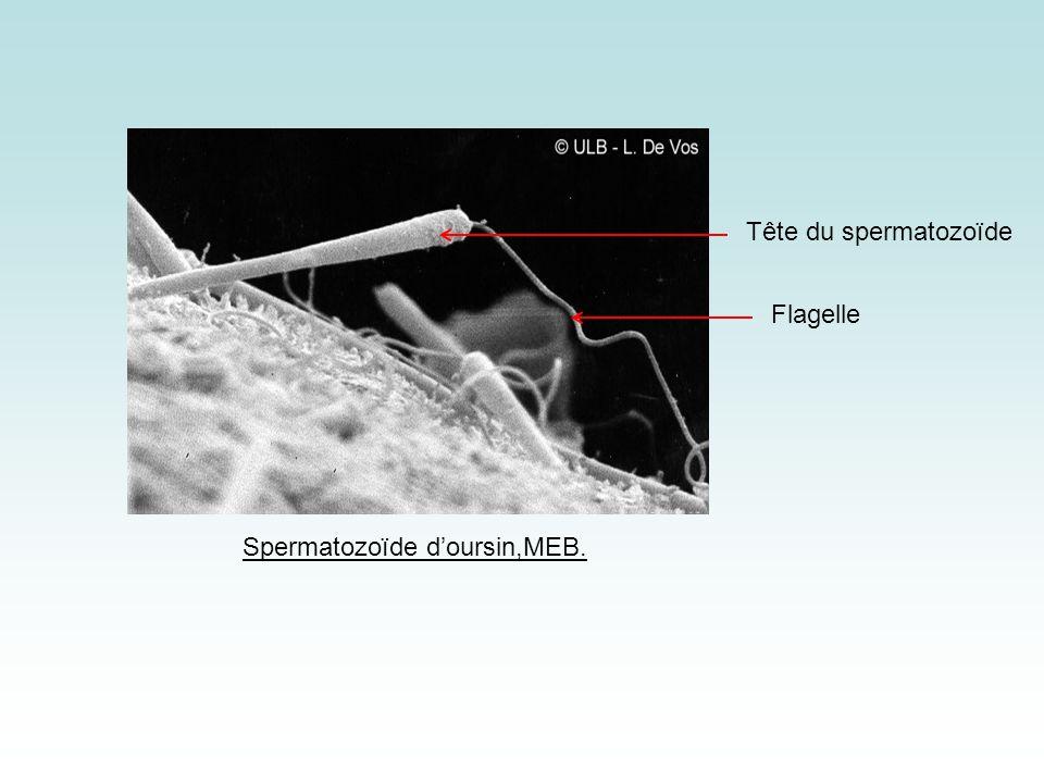 Spermatozoïde d'oursin,MEB.