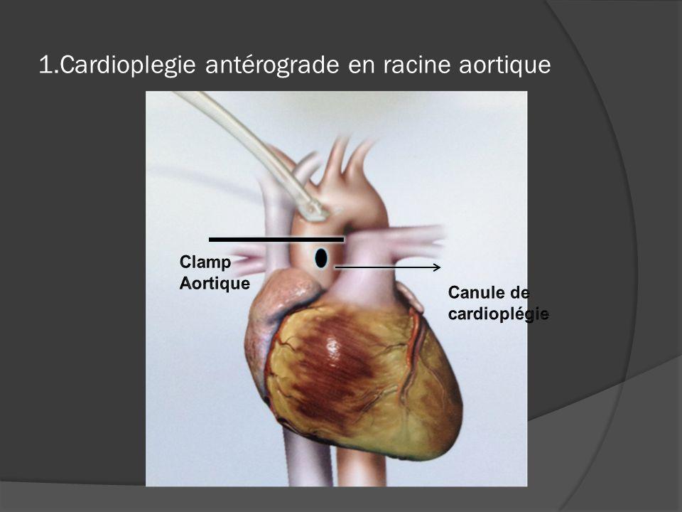 1.Cardioplegie antérograde en racine aortique