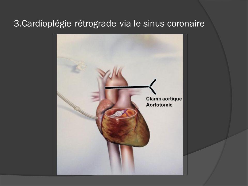 3.Cardioplégie rétrograde via le sinus coronaire