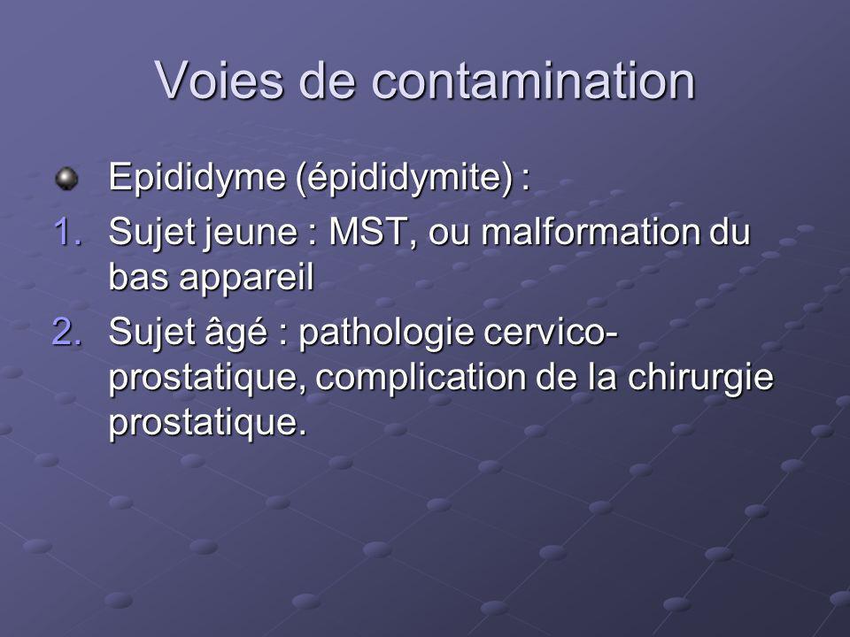 Voies de contamination