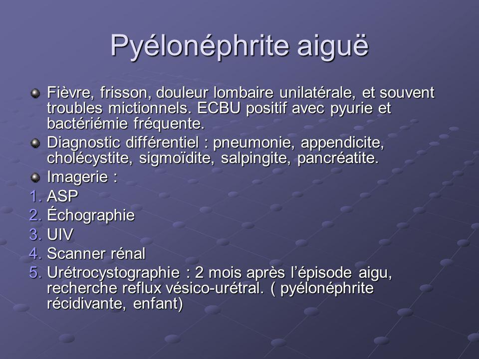 Pyélonéphrite aiguë