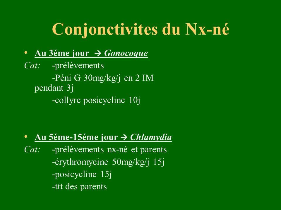 Conjonctivites du Nx-né