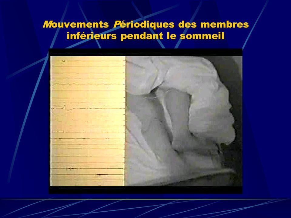 Mouvements Périodiques des membres inférieurs pendant le sommeil