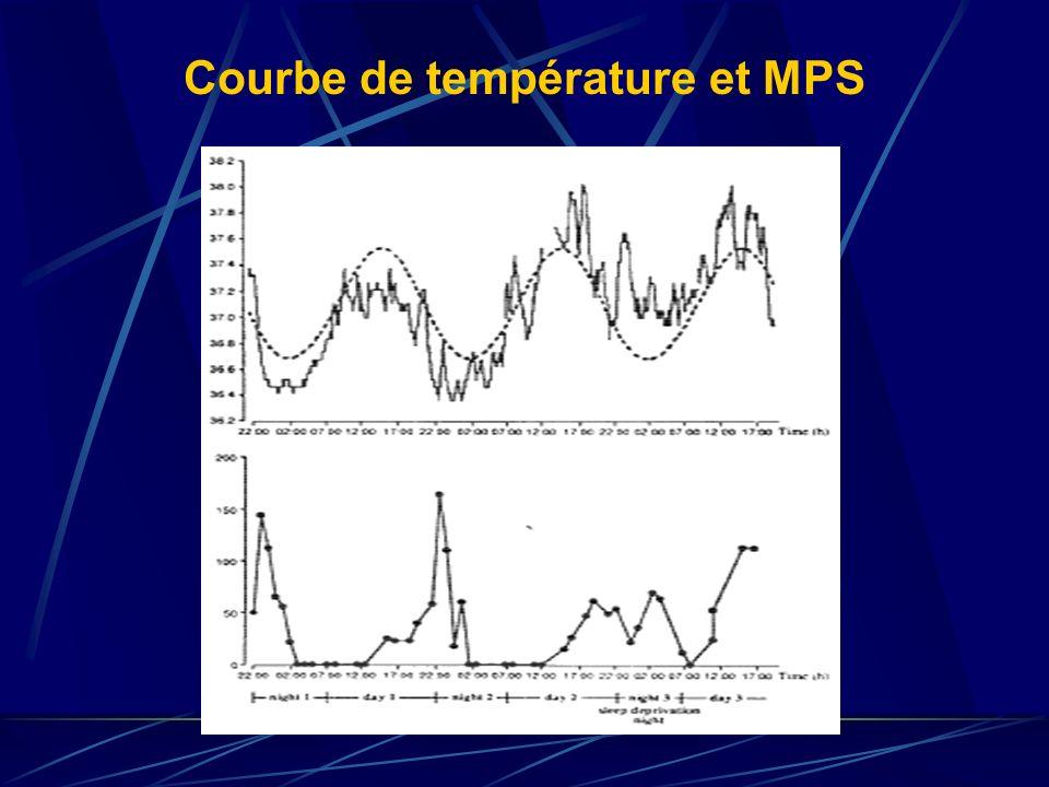 Courbe de température et MPS
