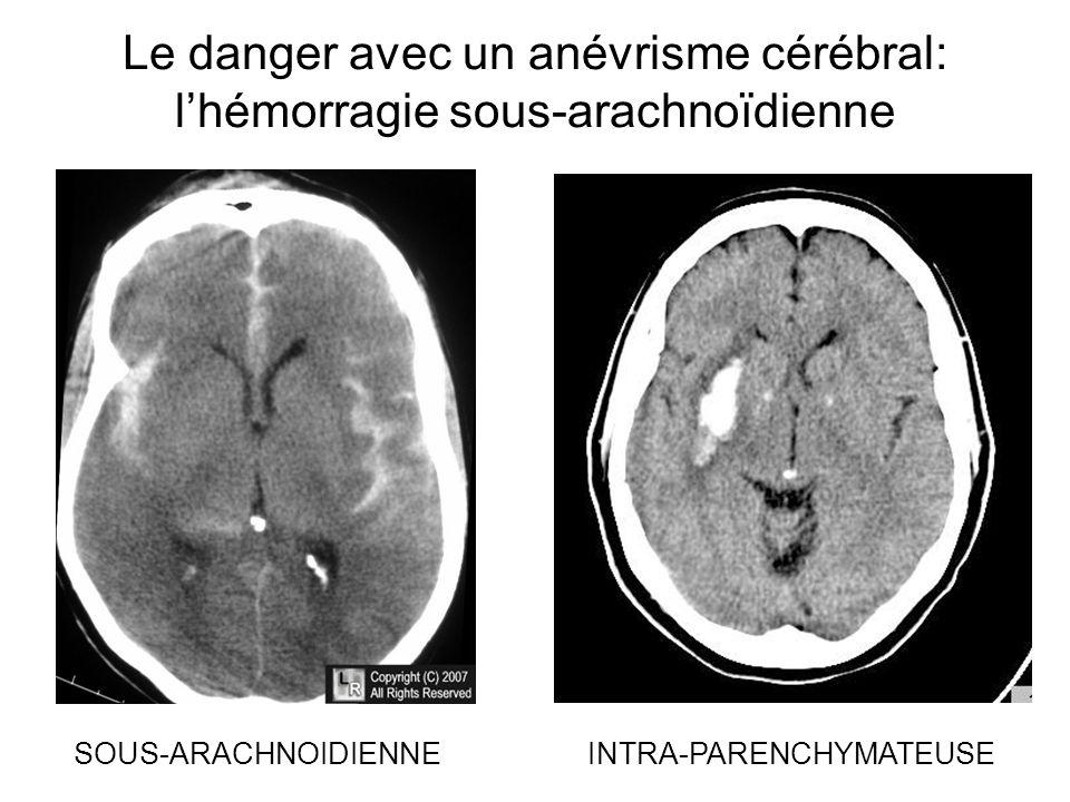 Le danger avec un anévrisme cérébral: l'hémorragie sous-arachnoïdienne