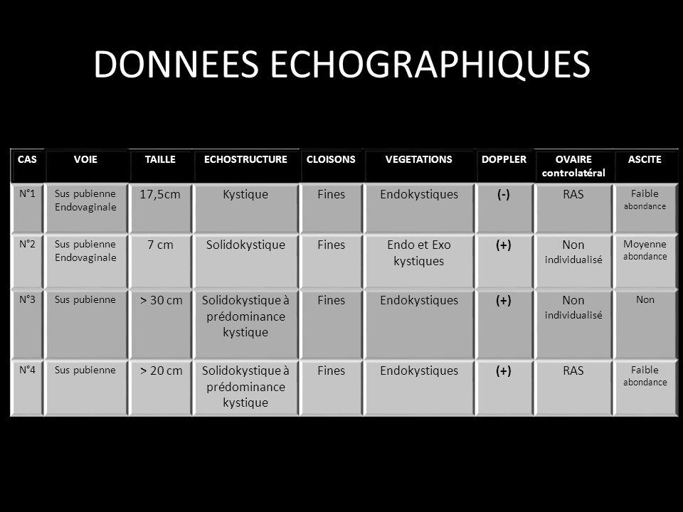 DONNEES ECHOGRAPHIQUES