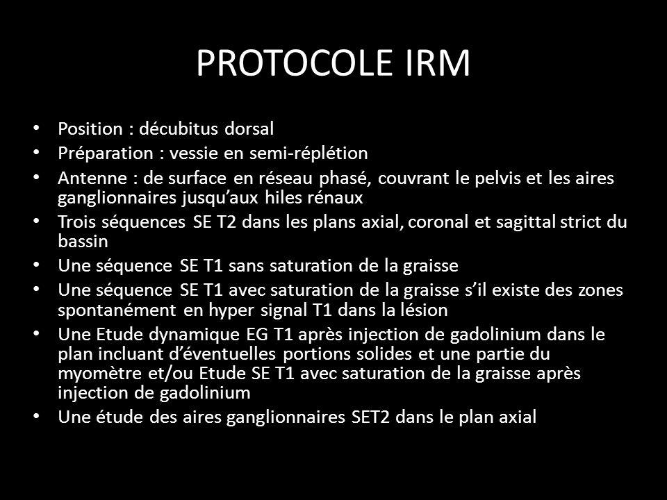 PROTOCOLE IRM Position : décubitus dorsal