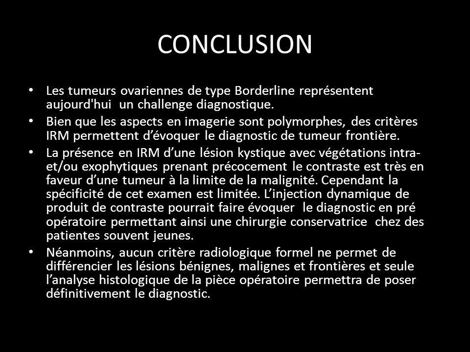 CONCLUSION Les tumeurs ovariennes de type Borderline représentent aujourd hui un challenge diagnostique.
