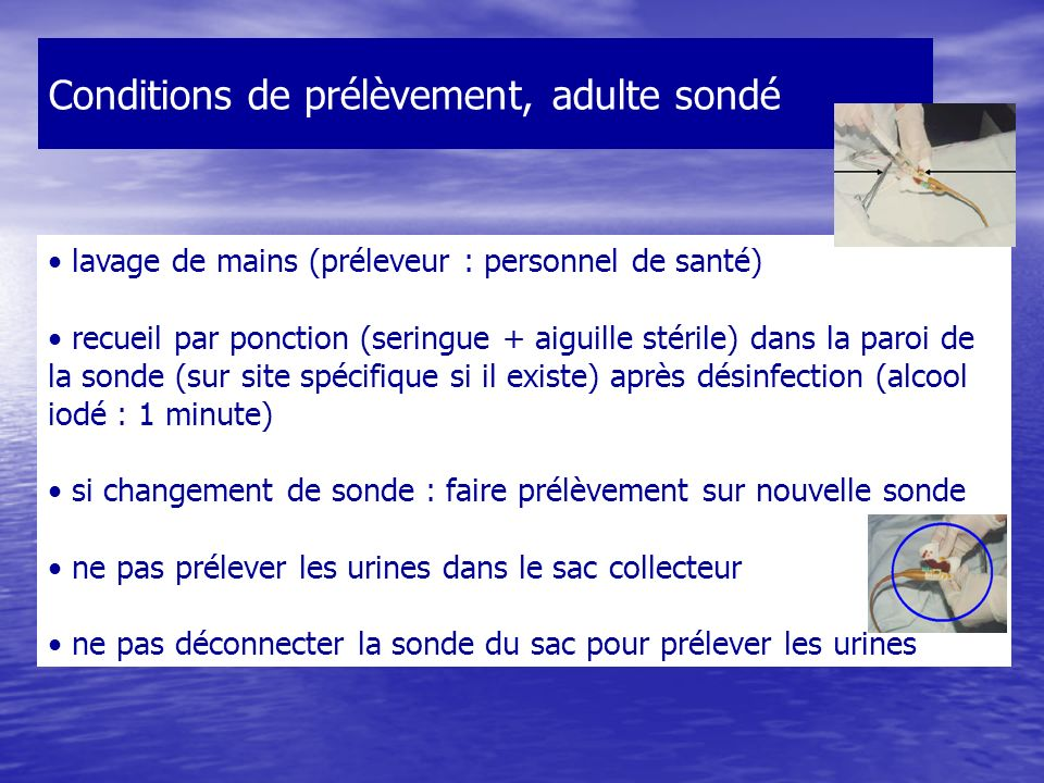 Conditions de prélèvement, adulte sondé