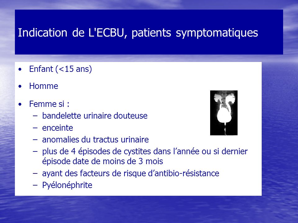 Indication de L ECBU, patients symptomatiques