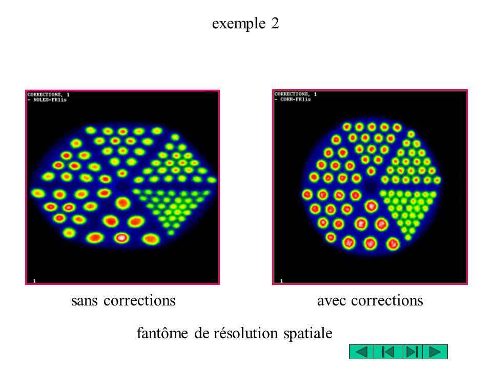 exemple 2 sans corrections avec corrections fantôme de résolution spatiale