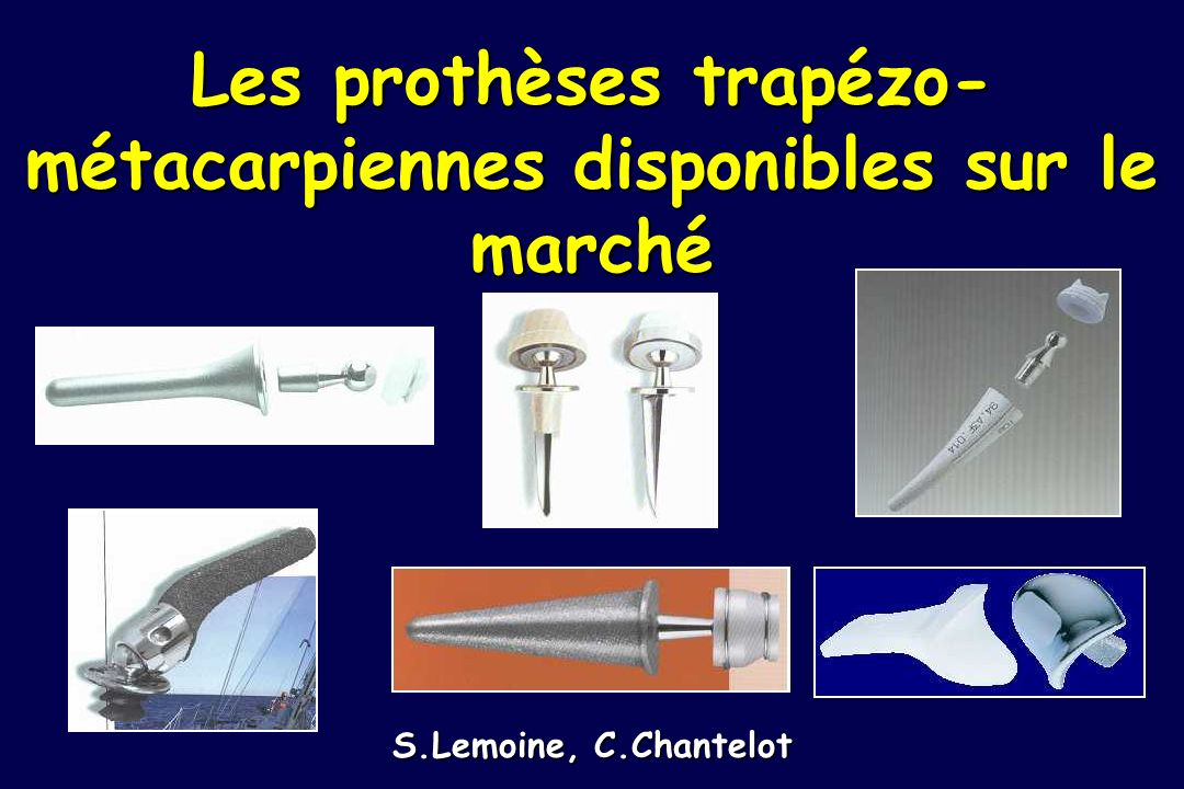 Les prothèses trapézo-métacarpiennes disponibles sur le marché