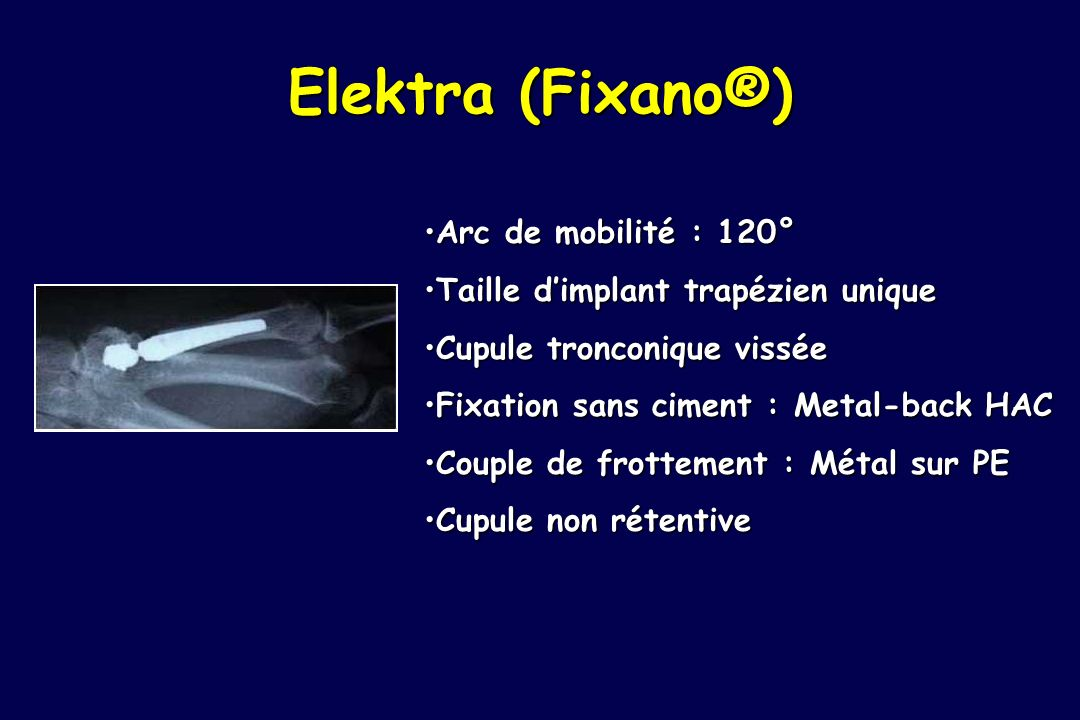 Elektra (Fixano®) Arc de mobilité : 120°
