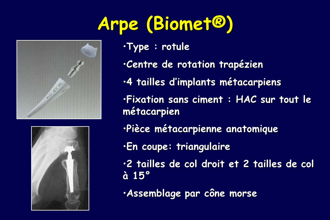 Arpe (Biomet®) Type : rotule Centre de rotation trapézien
