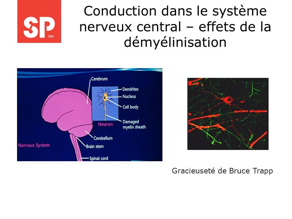 Conduction dans le système nerveux central – effets de la démyélinisation