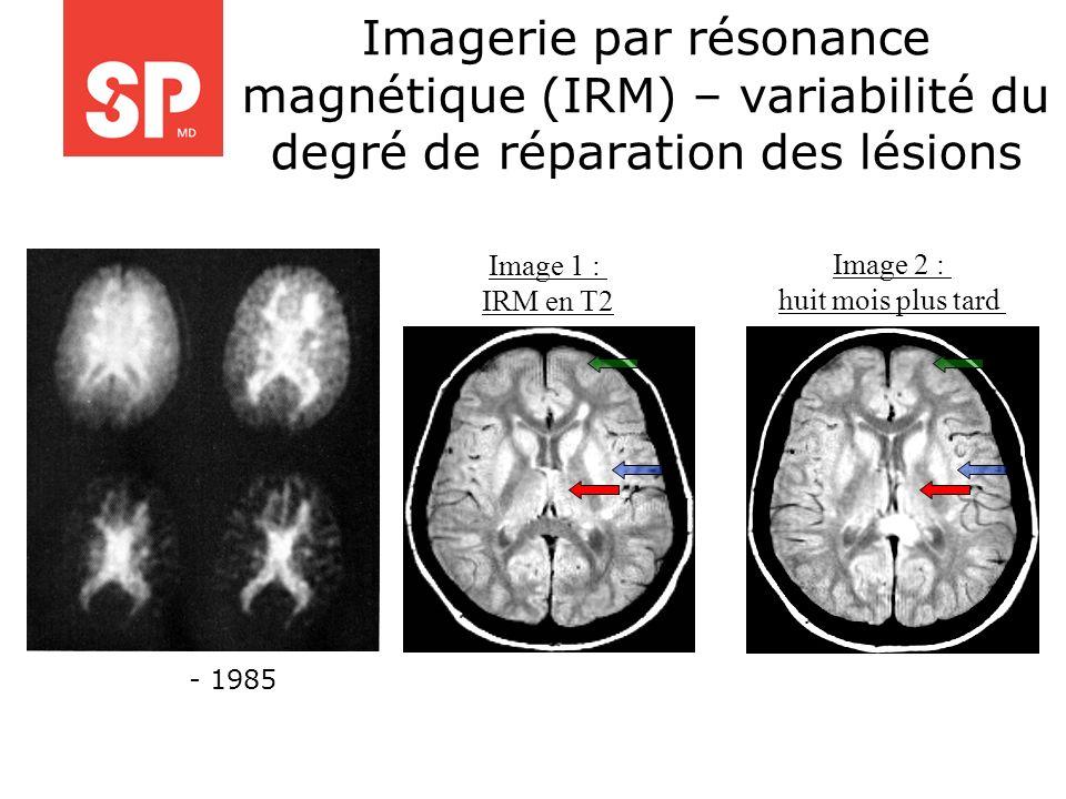 Imagerie par résonance magnétique (IRM) – variabilité du degré de réparation des lésions