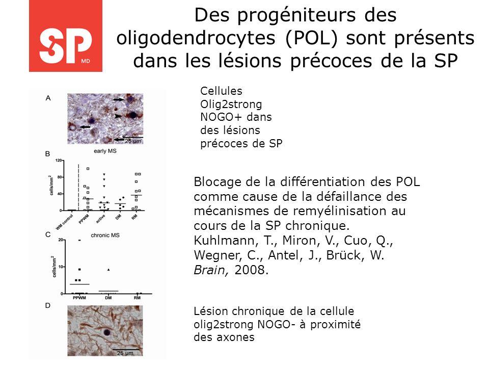 Des progéniteurs des oligodendrocytes (POL) sont présents dans les lésions précoces de la SP