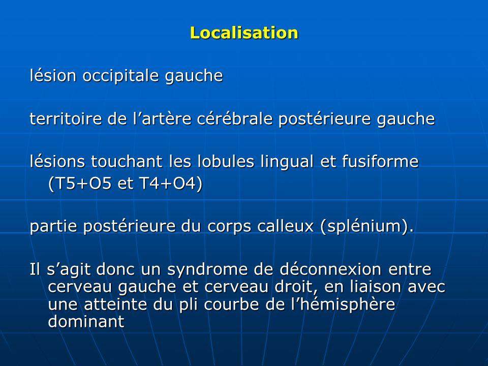 Localisation lésion occipitale gauche. territoire de l'artère cérébrale postérieure gauche. lésions touchant les lobules lingual et fusiforme.