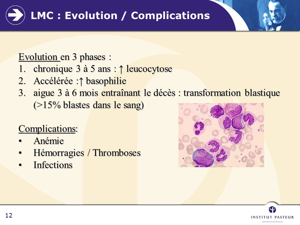 LMC : Evolution / Complications