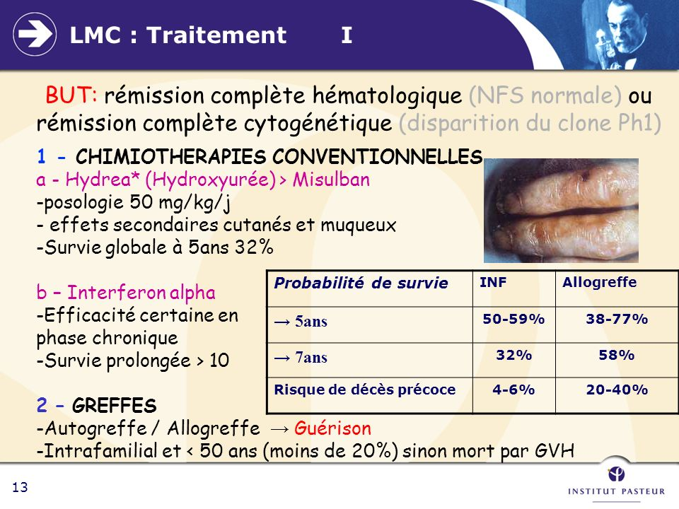LMC : Traitement I BUT: rémission complète hématologique (NFS normale) ou rémission complète cytogénétique (disparition du clone Ph1)