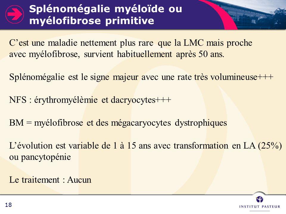 Splénomégalie myéloïde ou myélofibrose primitive