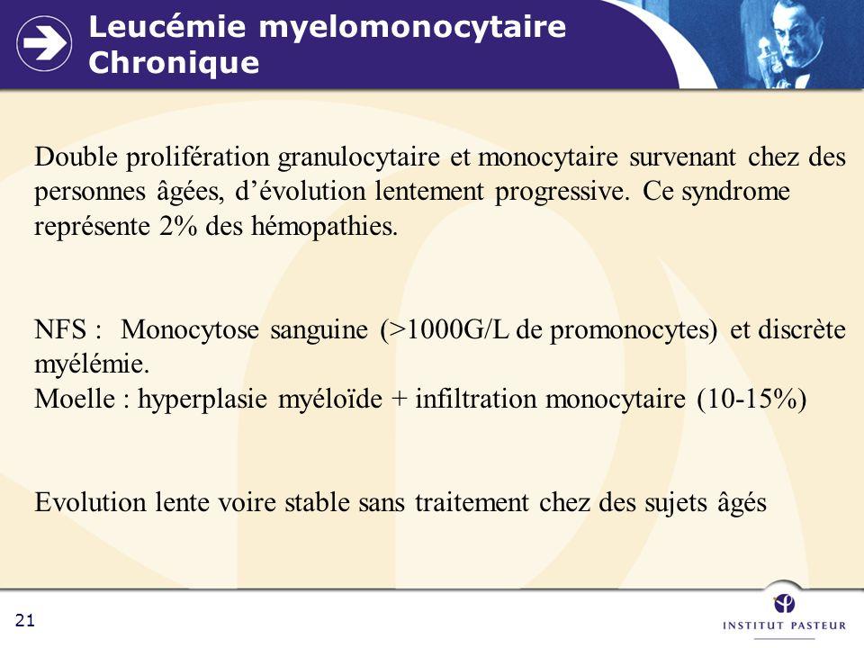 Leucémie myelomonocytaire Chronique