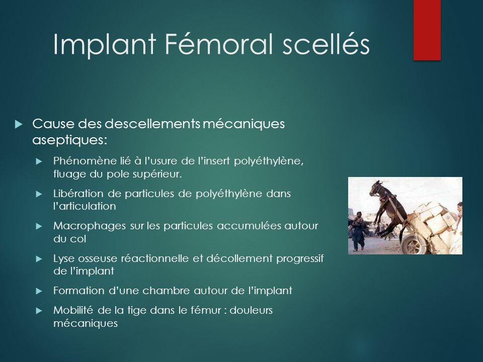 Implant Fémoral scellés