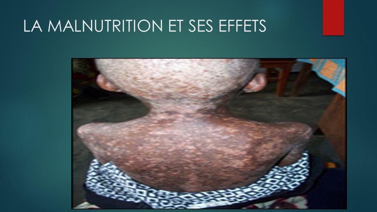 LA MALNUTRITION ET SES EFFETS