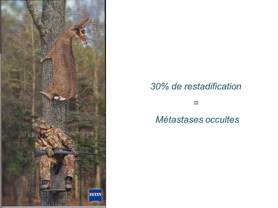 30% de restadification = Métastases occultes