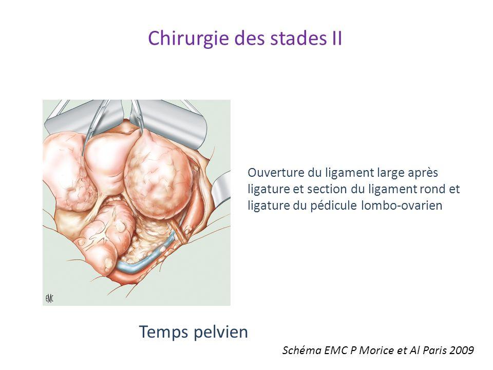 Chirurgie des stades II