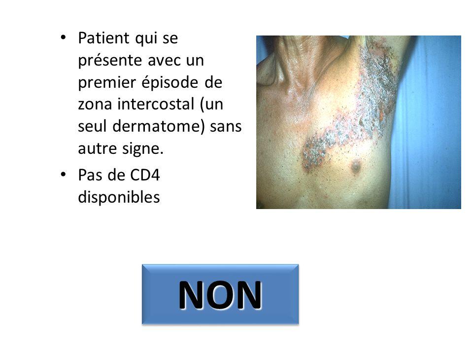 Patient qui se présente avec un premier épisode de zona intercostal (un seul dermatome) sans autre signe.