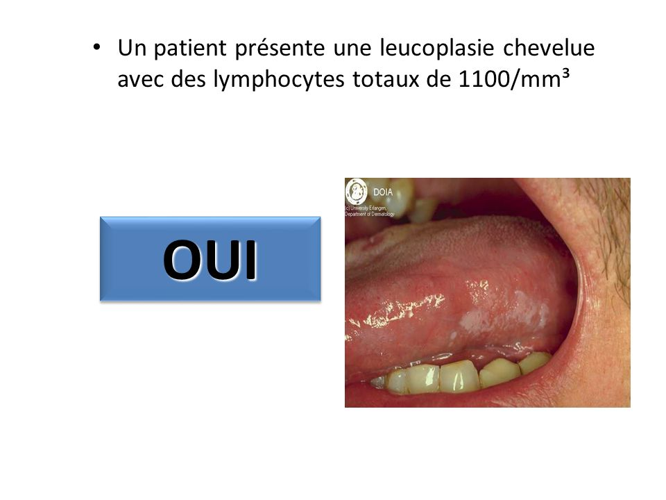 Un patient présente une leucoplasie chevelue avec des lymphocytes totaux de 1100/mm³