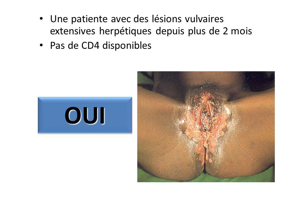 Une patiente avec des lésions vulvaires extensives herpétiques depuis plus de 2 mois