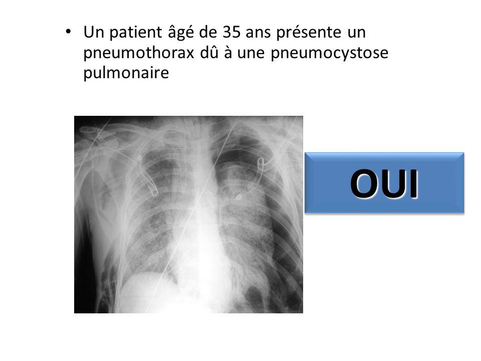 Un patient âgé de 35 ans présente un pneumothorax dû à une pneumocystose pulmonaire