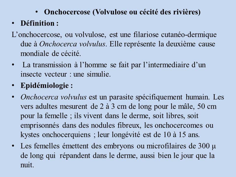 Onchocercose (Volvulose ou cécité des rivières)