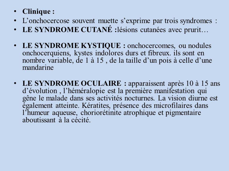 L'onchocercose souvent muette s'exprime par trois syndromes :