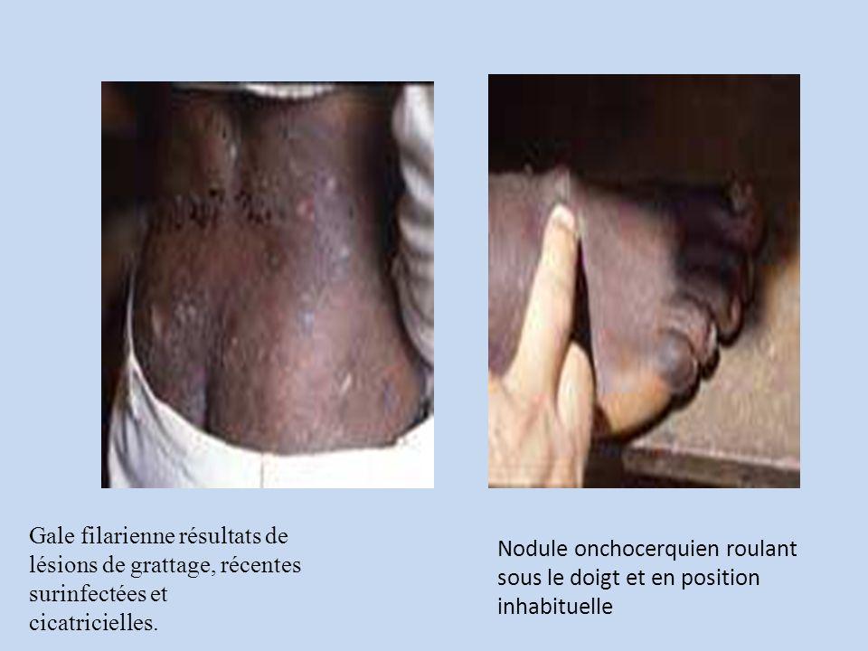 Gale filarienne résultats de lésions de grattage, récentes surinfectées et
