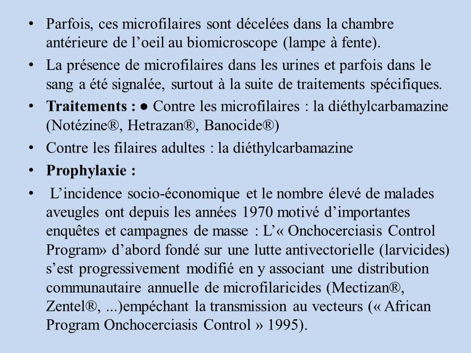 Parfois, ces microfilaires sont décelées dans la chambre antérieure de l'oeil au biomicroscope (lampe à fente).