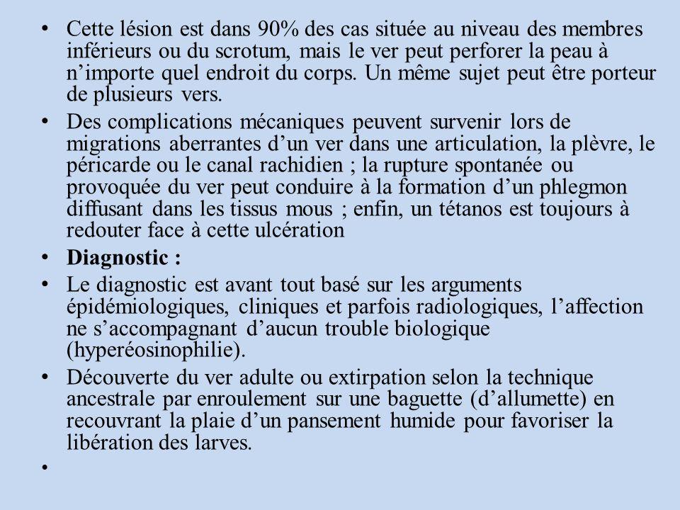Cette lésion est dans 90% des cas située au niveau des membres inférieurs ou du scrotum, mais le ver peut perforer la peau à n'importe quel endroit du corps. Un même sujet peut être porteur de plusieurs vers.