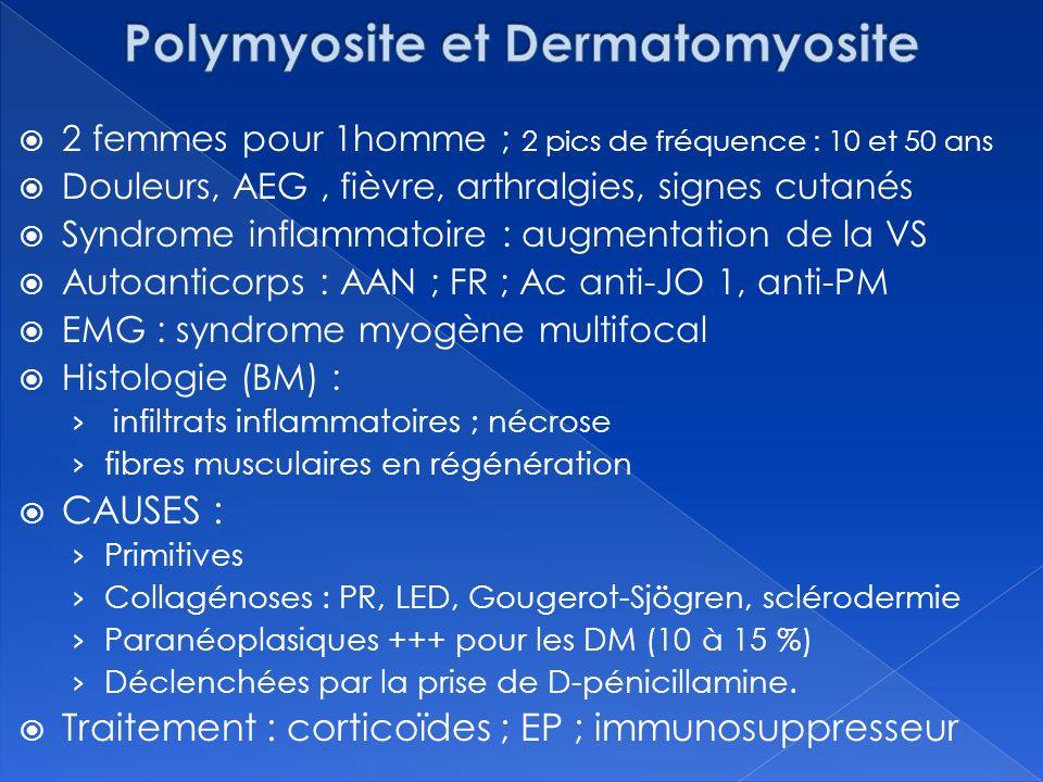 Polymyosite et Dermatomyosite
