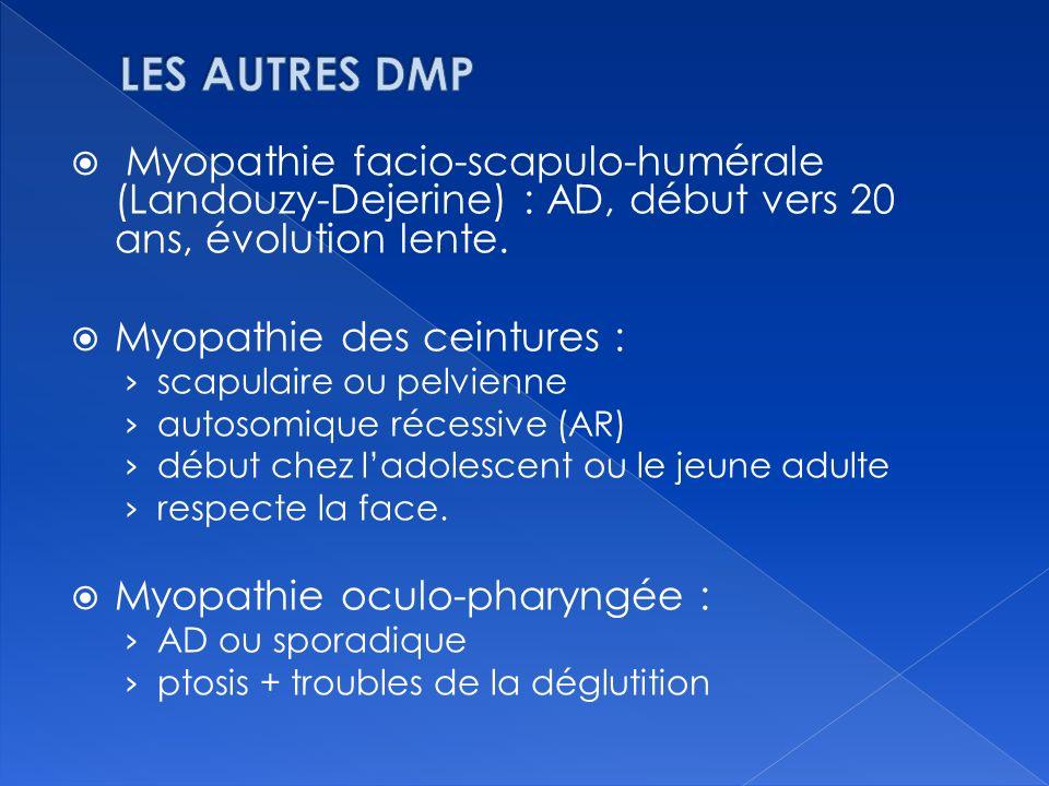 LES AUTRES DMP Myopathie facio-scapulo-humérale (Landouzy-Dejerine) : AD, début vers 20 ans, évolution lente.