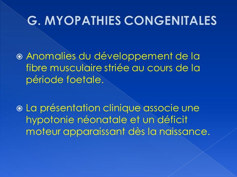 G. MYOPATHIES CONGENITALES