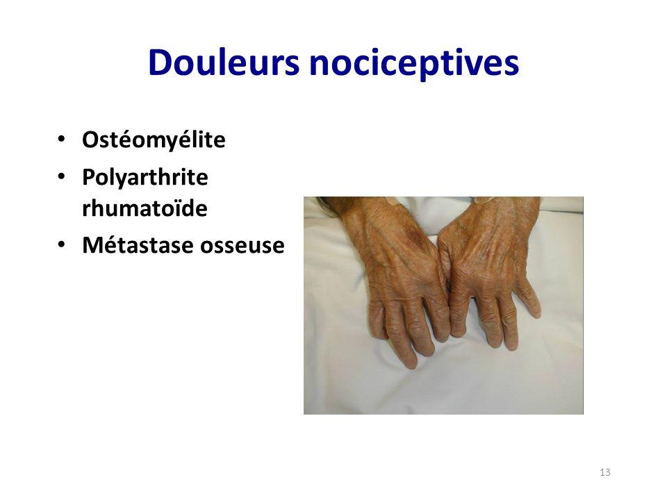 Douleurs nociceptives