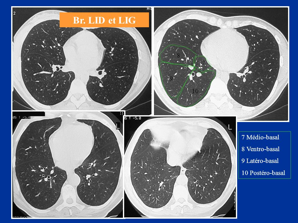 Br. LID et LIG 8 7 9 10 7 Médio-basal 8 Ventro-basal 9 Latéro-basal