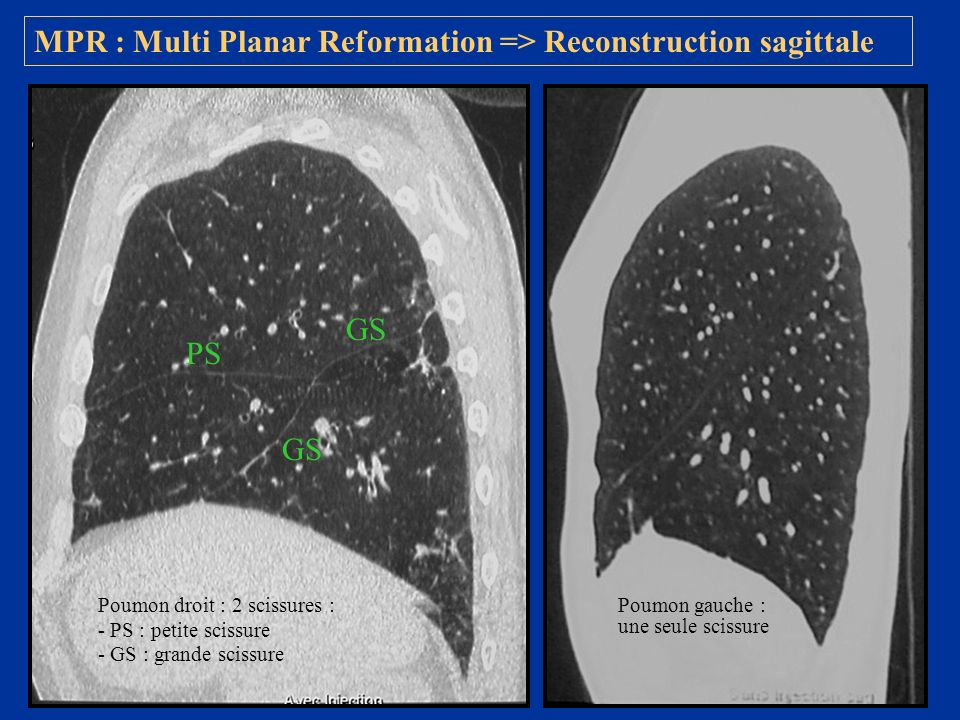 MPR : Multi Planar Reformation => Reconstruction sagittale