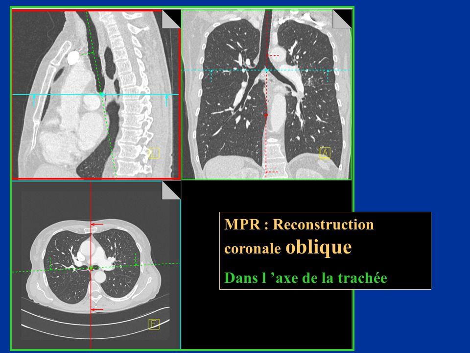 MPR : Reconstruction coronale oblique Dans l 'axe de la trachée